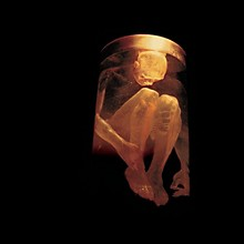 Alice in Chains - Nothing Safe: Best of (CD)