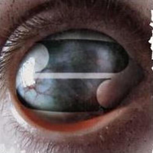 Alliance Filter - Crazy Eyes